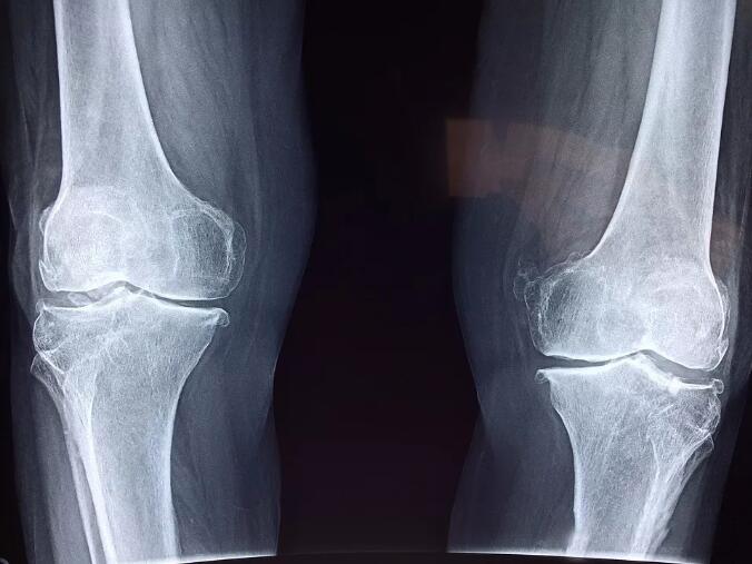 膝关节CT片