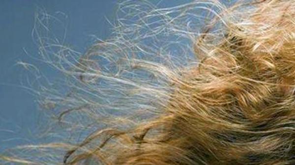 成都养老院-一暄康养分享夏天手脚发热是什么原因-毛发干枯