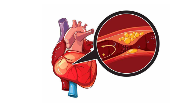 成都养老院一暄康养提醒清明时节五大疾病高发(二)-预防心肌梗塞2