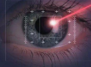 近视眼怎么恢复视力?