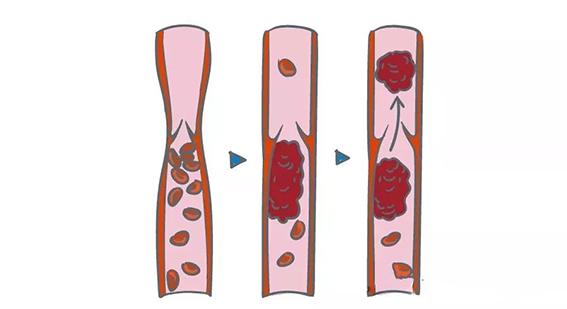 水蛭素血栓