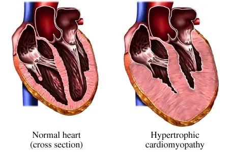 水蛭素、心脏病、冠心病